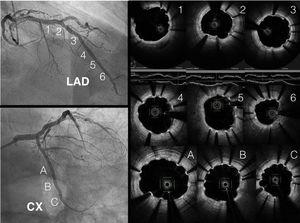 Optical coherence tomography images of the left anterior descending (LAD) and circumflex (CX) arteries, showing adequate apposition with partial covering of the struts. PCI: percutaneous coronary intervention.