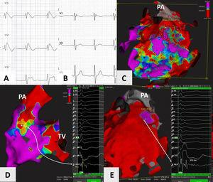 (A and B) Precordial leads (V1 to V3) showing presence of spontaneous type 1 Brugada pattern at the start of the procedure, and its disappearance nine months later&#59; (C) epicardial voltage map of the right ventricle using the Rhythmia™ mapping system, anteroposterior view with 0.5 and 1.5mV as voltage cut-off points, showing large areas of fibrosis in the right ventricular outflow tract (RVOT) and anterior wall of the right ventricle&#59; (D) endocardial voltage map of the right ventricle, posteroanterior view, showing an area of fibrosis in the posteroseptal aspect of the RVOT. A long (>120ms), complex, small-amplitude and fractionated potential is highlighted&#59; (E) potential duration map of the epicardial aspect of the right ventricle, anteroposterior view, showing area of potentials lasting more than 291ms (purple), corresponding to the ablated zone. Areas of potentials lasting less than 200ms are in red. Highlighted is a very long and complex potential measuring approximately 371ms. PA: pulmonary artery&#59; TV&#59; tricuspid valve.