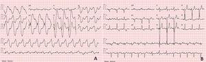 A: Electrocardiogram (ECG) showed widened QRS complexes with sine wave appearance&#59; B: ECG showed sinus rhythm with pacemaker-mediated ventricular conduction.