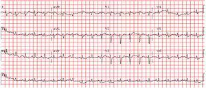 Eletrocardiograma na admissão no Serviço de Urgência demonstra taquicardia sinusal, desvio direito do eixo, bloqueio incompleto do ramo direito e inversão das ondas T na derivação III.