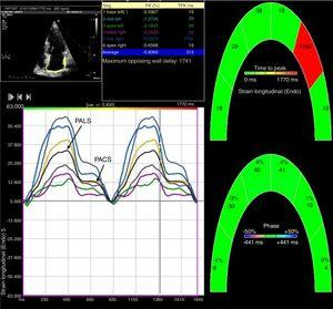 Two-dimensional left atrial speckle tracking analysis for the determination of left atrial (LA) strain: 4-chamber view depicting the corresponding LA strain curves for each of six segments analyzed in each view. Peak atrial longitudinal strain (PALS) is a measure of LA reservoir function and peak atrial contraction strain (PACS) is a marker of LA pump function. Conduit strain was calculated as the difference between PALS and PACS.