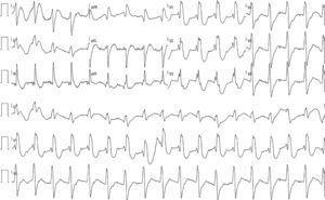 Eletrocardiograma de 12 derivações em ritmo próprio com QRS com padrão de bloqueio completo de ramo direito, intervalo PR no limite superior da normalidade, QTc: 405mseg.