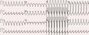 ECG 12 derivações: taquicardia regular, 190 bpm, QRS alargados (134ms), padrão de bloqueio de ramo esquerdo típico, eixo ‐30°, R monofásico em DI, rS em V1 e transição RS em V5, sugestiva de taquicardia de reentrada auriculoventricular mediada por VA‐M. VA‐M: via acessória do tipo Mahaim.