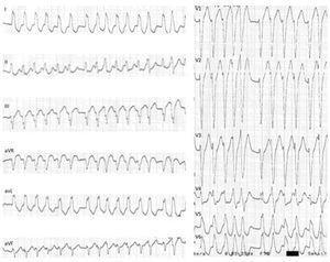ECG 12 derivações: fibrilhação auricular pré‐excitada mediada por VA‐M: taquicardia irregular, 230 bpm, com QRS alargados e de diferentes morfologias (em particular em V4 e V5). VA‐M: via acessória do tipo Mahaim.