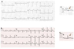 ECG 12 derivações: (A, A'): ritmo sinusal, 70bpm e com rS em DIII&#59; (B, B') pós‐ EEF com ablação: ritmo sinusal, 70bpm, com qR em DIII. EEF: estudo eletrofisiológico.