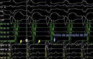 Estudo eletrofisiológico: deteção de potencial Mahaim/M (His‐like) no nível do anel tricúspide lateral e início de aplicação de radiofrequência.