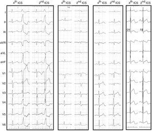 12-lead electrocardiogram &#40;<span class=