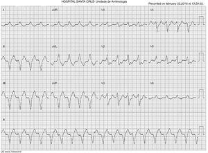 Electrocardiogram showing ventricular tachycardia with right bundle branch block and superior axis (cycle length 330 ms).