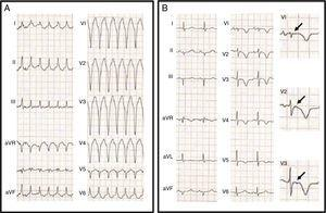 (A) 12-lead electrocardiogram (ECG) showing a wide QRS tachycardia, 190 bpm, left bundle branch block pattern with inferior axis, QS morphology in V1 and RS transition at V6&#59; (B) 12-lead ECG after synchronized electric cardioversion revealing epsilon waves (arrows) in the right precordial leads and inverted T waves from V1 to V5.
