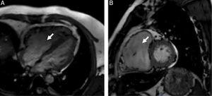 Cardiac magnetic resonance steady-state free precession cine imaging in 4-chamber view (A) and short-axis view (B) showing a severely dilated thin-walled right ventricle (arrow).