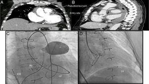 (A) Thoracic computed tomography angiogram, coronal view, showing the pseudoaneurysm and its entry site&#59; (B) sagittal view illustrating a large heterogeneous pericardial fluid collection compressing the great vessels&#59; (C) angiogram of the pseudoaneurysm&#59; (D) closure device inside the pseudoaneurysm and distal disk positioned at the left ventricular wall. Ao: aorta&#59; ICE: intracardiac echocardiography&#59; LV: left ventricle&#59; * pseudoaneurysm/closure device.