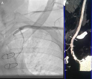 (A) Sub-occlusive stenosis of left subclavian artery on angiogram. (B) CT angiography of supra-aortic vessels shows sub-occlusive and calcified stenosis of the subclavian artery ostium with heavy calcification of the aorta.