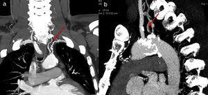 Abnormal origin of the vertebral artery from the aortic arch.