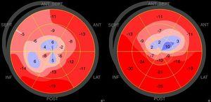 Examples of polar maps of peak systolic longitudinal strain obtained from a Takotsubo syndrome patient (left) and an anterior ST-segment elevation myocardial infarction patient (right).