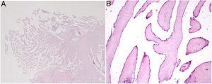 Microscopic appearance of papillary fibroelastoma. (A) Panoramic view of the lesion showing avascular branching fronds lined by endothelial cells (hematoxylin/eosin stain, original magnification ×16)&#59; (B) the fronds consist of a fibrous core surrounded by loose connective tissue and an endothelial lining (hematoxylin/eosin stain, original magnification ×100).