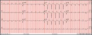 Initial 12-lead electrocardiogram showing sinus tachycardia at 140 bpm, QS pattern in leads V1-V4, and first-degree atrioventricular block following one premature ventricular contraction.