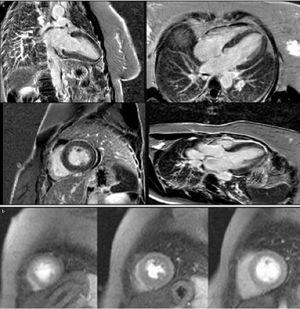 Cardiac magnetic resonance imaging, contrast-enhanced sequences with gadolinium (a) and perfusion sequences (b), showing no significant late enhancement and no perfusion defects.