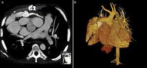 AngioTC: presença de trombo suboclusivo no conduto (4A *); reconstrução 3D da complexa anatomia cardíaca (4B).