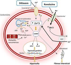Alterações na homeostase do Ca2+ e na INaL na MCH e modo de atuação do diltiazem e ranolazina12,14,21 Legenda: ATP‐ adenosina trifosfato; ADP‐ adenosina monofosfato; CaMKII‐ proteína cinase II Ca2+/calmodulina dependente; INaL‐ corrente tardia de sódio; MEF2‐ fator 2 ativador do miócito; NCX‐ permutador sódio/cálcio; NF‐κB‐ fator de transcrição nuclear kappa B; SERCA‐ ATPase de Ca2+ sarco‐endoplasmática; RyR‐ recetor de rianodina.