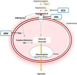 Importância do SRAA na fisiopatologia da MCH e mecanismo de ação dos diferentes fármacos inibidores deste sistema44,45 Legenda: ARA‐ antagonista do recetor da angiotensina; ARM‐ antagonista do recetor dos mineralocorticóides; AT1R‐ recetor tipo 1da angiotensina II; CaMKII‐ proteína cinase II Ca2+/calmodulina dependente; ECA‐ enzima conversora da angiotensina; IECA‐ inibidor da enzima conversora da angiotensina; JAK‐ Cinase Janus; MEF2‐ fator 2 ativador do miócito; NF‐κB‐ fator de transcrição nuclear kappa B; RM‐ recetor de mineralocorticóides; STAT‐ transdutor de sinal e ativador da transcrição.