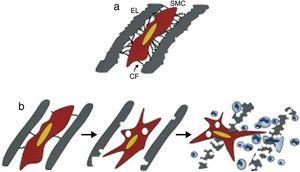 (a) Mecanismo de ligação da célula muscular lisa às lâminas elásticas circundantes por intermédio de filamentos de conexão compostos por fibrilina‐1. (b) Modelo de elastólise na síndrome de Marfan, mostrando que o défice de filamentos de fibrilina‐1 origina uma alteração no programa sintético da célula muscular lisa que contribui para uma elastólise precoce, à qual se associa uma infiltração de células inflamatórias na túnica média do vaso sanguíneo precipitando o seu colapso estrutural. Adaptado de Phenotypic Alteration of Vascular Smooth Muscle Cells Precedes Elastolysis in a Mouse Model of Marfan Syndrome, Bunton TE, Biery NJ, Myers L, et al., Circ Res, 88:37‐43, 2001. CF, filamento de conexão; EL, lâmina elástica; SMC, célula muscular lisa.
