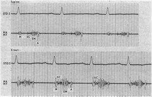 Phonocardiogram of a late systolic murmur and non-ejection click of a young woman, in the supine and erect positions, as was diagnosed at the time.