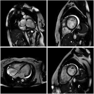 Cardiac magnetic resonance imaging showing congestive heart failure/cardiomyopathy of probable inflammatory etiology (Chagas myocarditis), with significant dysfunction and increased biventricular diameters, significantly dilated right atrium and tricuspid regurgitation, dilated left atrium and mitral insufficiency, and pericardial effusion.