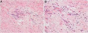 (A) Focal lymphocytic myocarditis. Slight edema and a prominent lymphocytic infiltrate are present in the interstitium. Absence of fibrosis (hematoxylin and eosin). (B) Interstitial lymphocytic infiltration and myocyte damage in the form of apoptosis are present (hematoxylin and eosin).