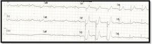 Initial electrocardiogram showing a De Winter pattern (3-6mm ST-segment depression with high symmetrical T waves in leads V2-V3).
