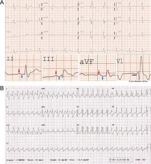 (A) Sinus rhythm at 66 bpm with a prolonged and +/- biphasic P wave in the inferior leads (red arrow: + component; blue arrow: - component), which meets the criteria of advanced interatrial block and a right bundle branch block. (B) Regular wide QRS complex tachycardia at 171 bpm. The absence of AV dissociation or precordial concordance, RS interval <100 ms and typical right bundle branch block morphology (identical to the baseline ECG) suggests a supraventricular origin. An adenosine test was performed, unmasking atrial flutter (not shown).