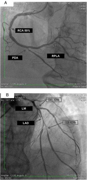 (A) Right coronary artery (RCA) with important calcification and 50% lesion in the mid third, posterior descending artery (PDA) and right posterolateral artery (RPLA) with severe calcification and lesions of 80% and 70%; respectively; (B) left main (LM) with calcified lesions of 80% in the distal third, left anterior descending artery (LAD) with significant calcification and 90% in the mid third, and diagonal branches (DG1 and DG2) with calcified lesions of 70 and 80%, respectively. The left circumflex is occluded and calcified.