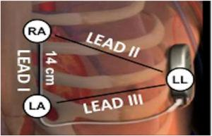 Diagram of subcutaneous implantable cardioverter-defibrillator lead vectors and placement of surface electrodes (white circles) during screening. The alternate lead vector extends from 1 cm left lateral of the xiphoid process (LA) to the fifth or sixth intercostal space along the left mid-axillary line (LL). The secondary lead vector extends from 14 cm cranially to the LA (RA) to the LL. The primary lead vector extends from RA to LA (images courtesy of Boston Scientific Corporation).
