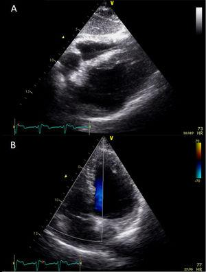 Post-procedure echocardiogram, subcostal view, revealing a well-positioned permanent pacemaker lead (A); no shunt was detected between the right and left chambers (B).