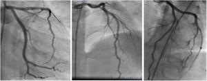 Control coronary angiography showed a normal coronary artery flow and no more thrombi in distal left anterior descending artery.