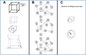 Examples of patient performance in assessing visuospatial executive domain (A: Copy the cube; B: Complete the sequence; C: Draw a clock: 11:10).
