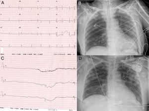 (A) Electrocardiogram showing sinus bradycardia and (B) sinus arrest with a pause >6 seconds. (C and D) Chest x-ray showing bilateral pulmonary infiltrates predominantly peripheral, before and after pacemaker implantation.
