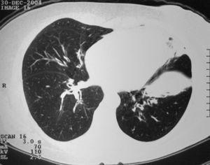Tomografia computorizada de alta resolução do doente 1 mostrando um infiltrado parenquimatoso na língula e lobo inferior esquerdo e espessamento intersticial peribroncovascular.