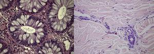 Biopsias cólica (esquerda) e cutânea (direita) mostrando um infiltrado denso de eosinófilos na mucosa cólica e nas paredes dos vasos da pele (HE 400x).