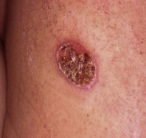 Lesão ulcerada no dorso com 2 meses de evolução.