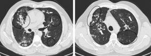 Aspetos em TCAR pulmonar. Esquerda: Área de consolidaçãono no lobo médio com broncograma aéreo e distorção arquitectural. Áreas de padrão em «vidro despolido» dispersas no campo pulmonar esquerdo. Granulomas bilaterais, alguns com cavitação (setas). Espessamento espiculado da pleura mediastínica. Direita: Enfisema paracicatricial e cavitação no lobo superior direito. Banda de parênquima (seta) e espessamento de septos interlobulares no parênquima pulmonar esquerdo.