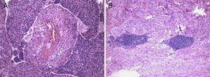 A) Células fusiformes irradiando da parede espessada de vasos e células epitelióides na periferia. Sem mitoses ou atipia detetadas. B) Vestígios de linfonodo.