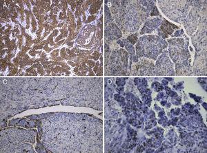 A) Positividade citoplasmática para actina de músculo liso. B) Positividade multifocal para HMB-45. A positividade é mais evidente nos agregados epitelióides. C) Fendas com positividade no revestimento para CD34 – Espaços sinusoidais. D) Positividade nuclear para estrogénio.