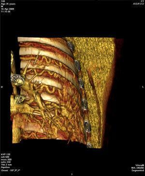 Reconstrução coronal 3D demonstra dilatação e tortuosidade das artérias intercostais e ramo segmentar da artéria pulmonar associado a novelo vascular periférico no lobo inferior esquerdo.