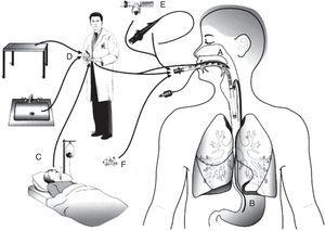 Routes of colonization/infection in mechanically ventilated patients21 A – oral and pharyngeal colonization&#59; B – gastric colonization&#59; C – infected patients&#59; D – handling of respiratory equipment&#59; E – use of respiratory devices&#59; and F – aerosols from contaminated air.
