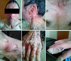Epidermodysplasia verruciformis on patient's hands, trunk and head.