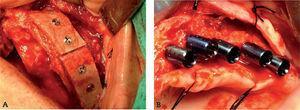 La cresta ilíaca puede ser considerada ellugardonante extraoral de elección, al ser capaz de conseguir suficiente volumen para el injerto óseo sinusal y la reconstrucción alveolar maxilar.