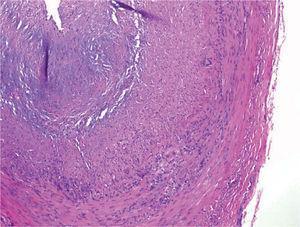 - Imagen de corte histológico de la afectación arterial.