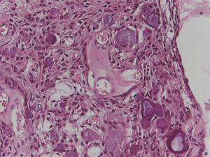 Aspecto histopatológico de la lesión evidenciando proliferación de células epiteliales odontogénicas e inúmeros focos arredondeados concéntricos de mineralización (anillos de Liesegang) (HE 40x).