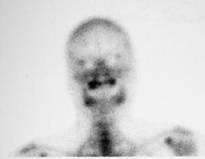 Caso 3. Gammagrafía ósea de perfusión que muestra falta de vascularización en la región anterior del maxilar.