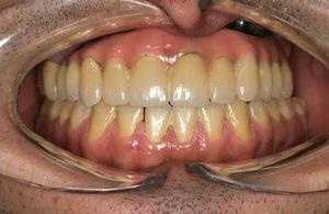 Caso 3: Rehabilitación de las secuelas mediante implantes dentales y prótesis híbrida.
